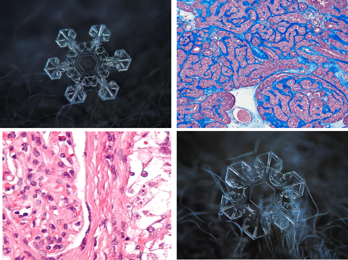 "Study shows that Metastatic cancers are ""malignant snowflakes,"" each having unique genomic portfolios"