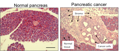pancreatic cancer stroma